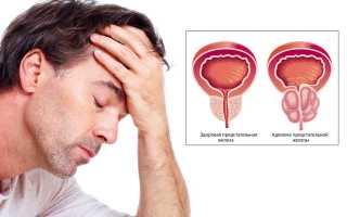 Аденома предстательной железы: симптомы и лечение