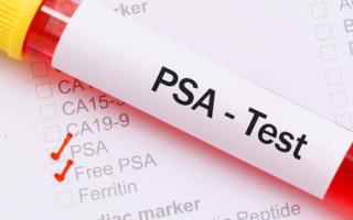 Анализ ПСА при простатите: как его расшифровать?