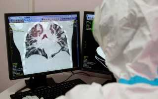 В Пермском крае Осинский округ оказался в лидерах по числу заболевших коронавирусом в регионе