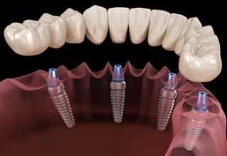 Где лучше делать имплантацию?