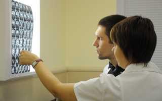 Реабилитация после инсультов и травм в клинике неврологии Аксимед