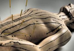Иглоукалывание при простатите: особенности метода и противопоказания