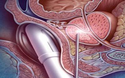 Как берут биопсию при аденоме простаты