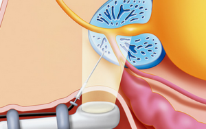 как делают биопсию простаты
