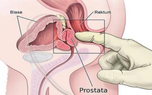 плотная простата