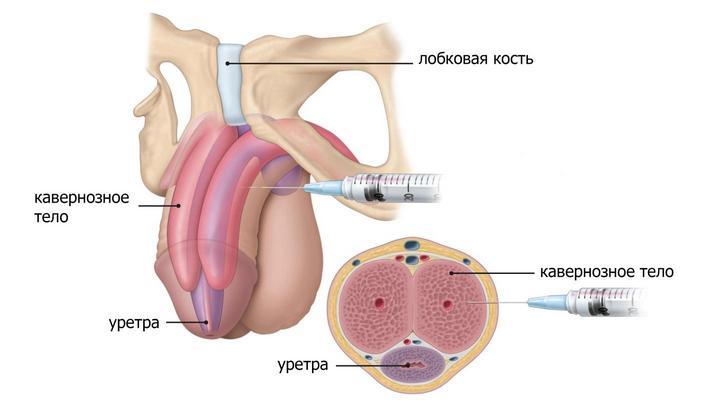 Инъекции гиалурона в пенис