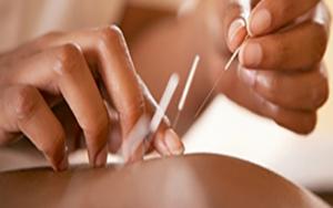 лечение простатита иглотерапией